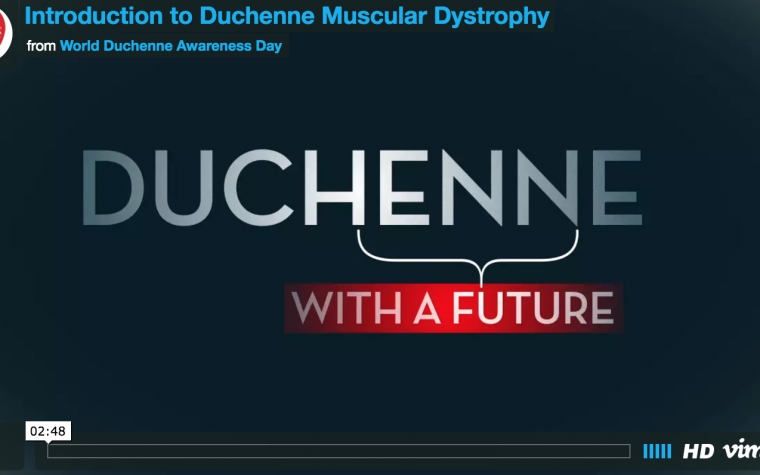 The echocardiogram of a    year old boy with Duchenne muscular dystrophy showing severe dilated cardiomyopathy  Abbreviations  RV  right ventricle  IVS      Dove Medical Press