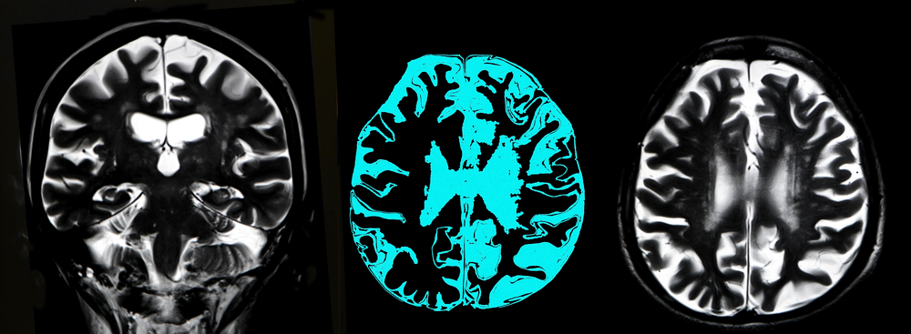 White Matter Brain Lesions May Be Linked to Cognitive Dysfunction in Myotonic Dystrophy Type 1