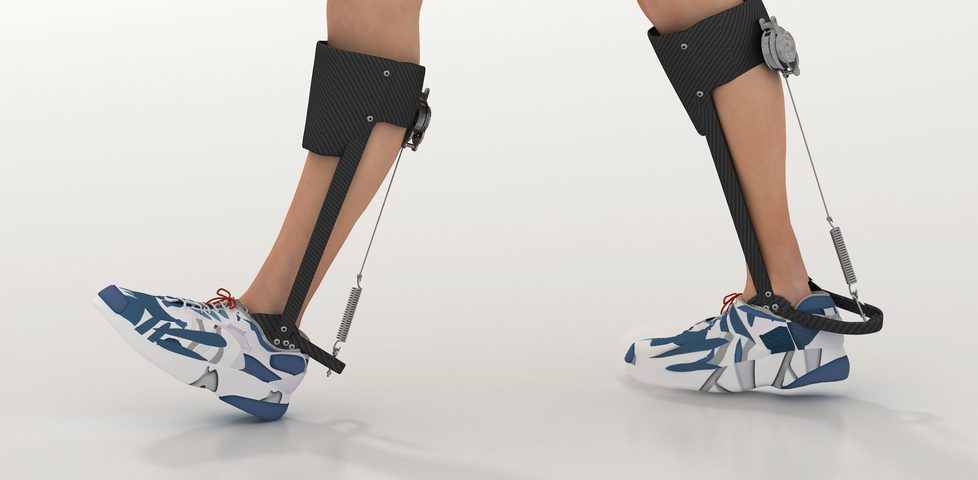 Exoskeleton-supported Training Improved Movement in Limb-Girdle Patients, Small Study Found